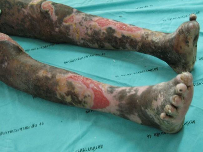Leprosy Isn't Gone -- And Women Bear The Burden