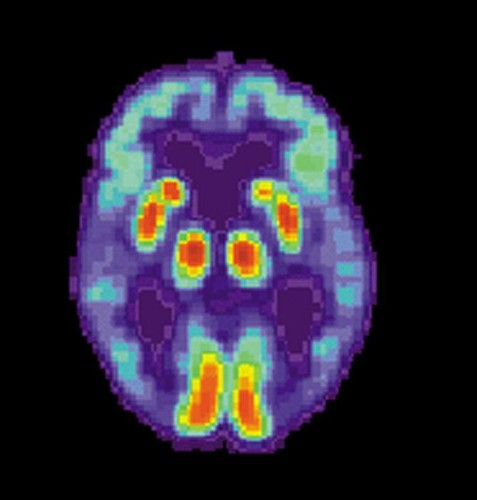 Hard Evidence We Can Slow Alzheimer's By Exercising The Body And The Mind