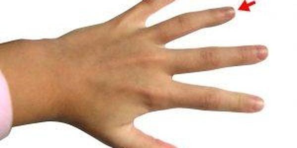 Does The Length Of Your Ring Finger Predict Your Sexual Orientation? Hmm.