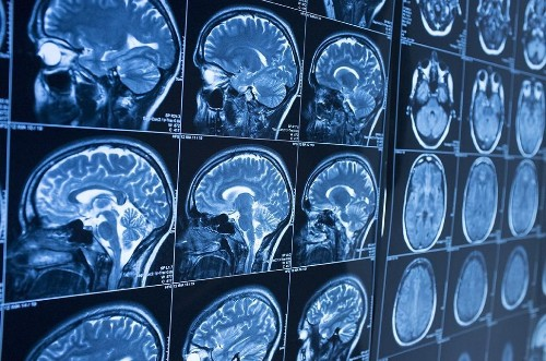 Revolutionizing Radiology with Deep Learning at Partners Healthcare--and Many Others