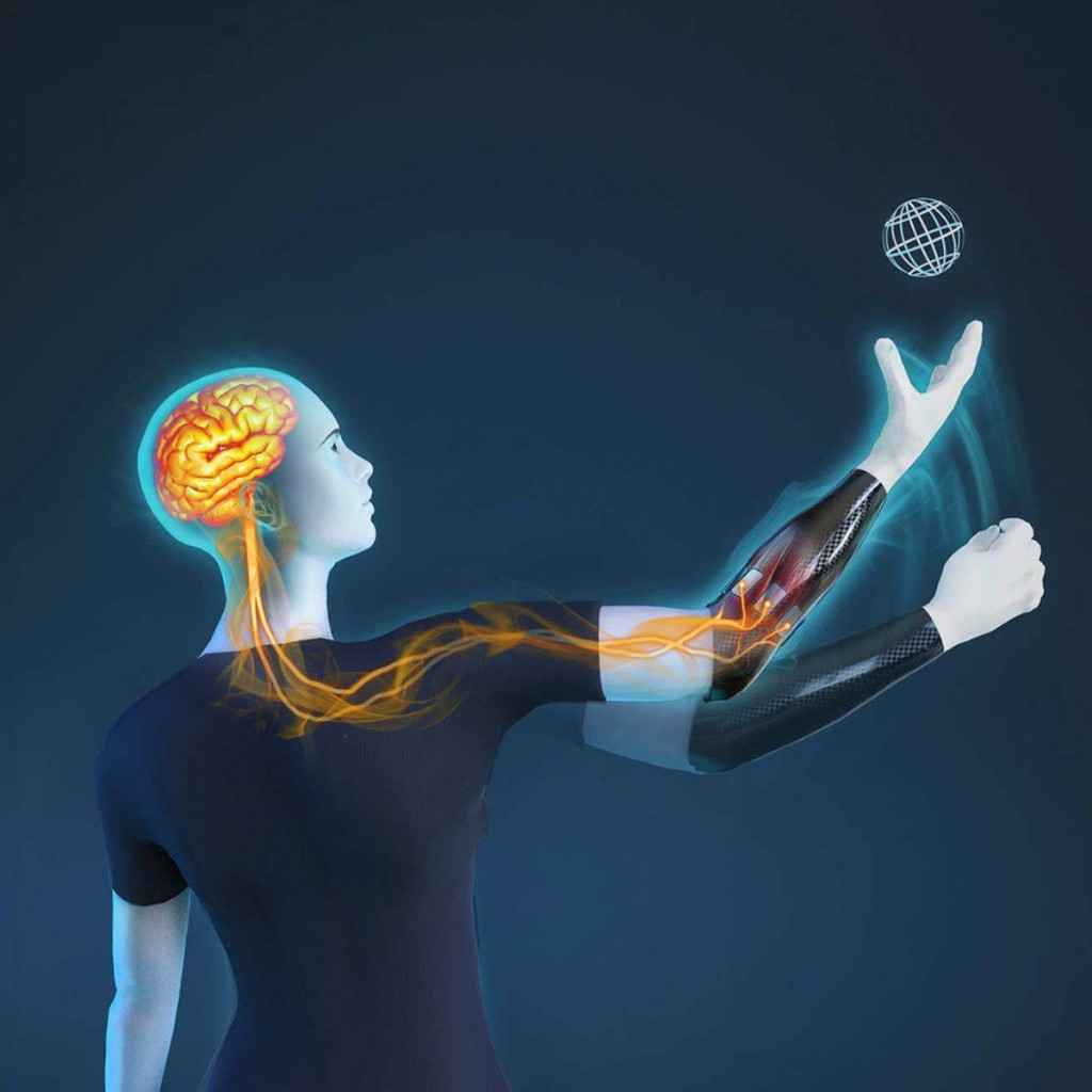 Artificial Intelligence And Prosthetics Join Forces To Create New Generation Bionic Hand