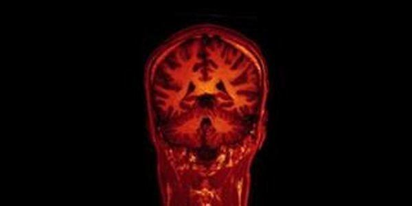 Multimillion-Pound Brain Fund Set Up To Stop Teachers Buying Into Neuroscience Myths