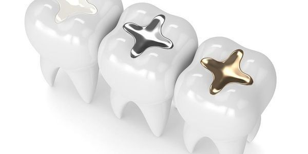 The Case Against Amalgam Fillings