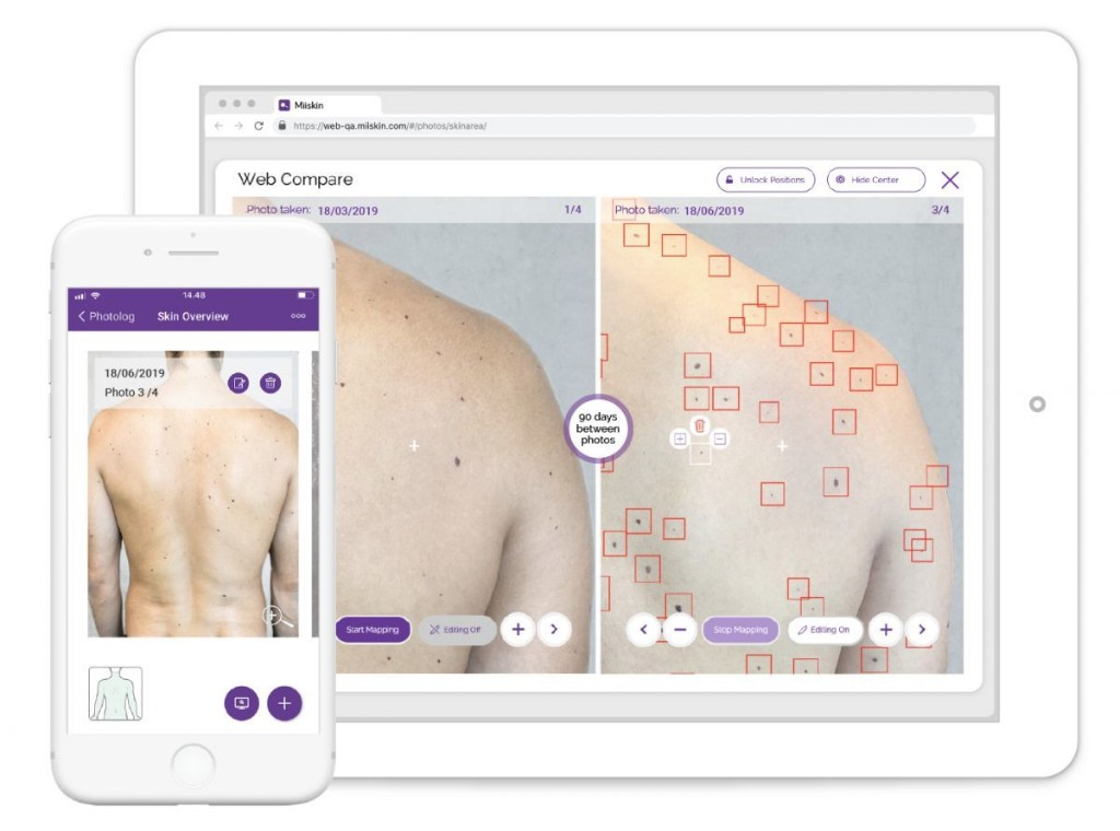 Mole-Mapping App Miiskin Uses AI To Help Adults Detect Warning Signs Of Melanoma