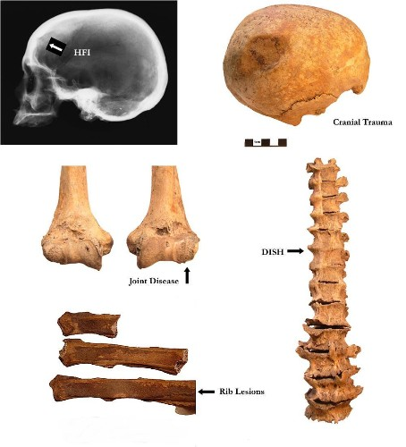 Industrial Revolution Caused Rise In Cancer, Obesity, And Arthritis, Archaeologists Suggest