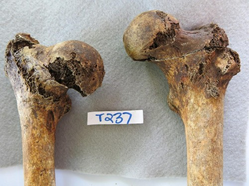 Ancient Roman Man Tiptoed Through Life From A Hip Fracture
