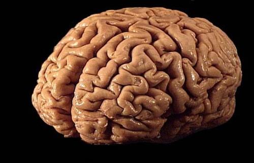Children Of Rich Parents Have Bigger Brains