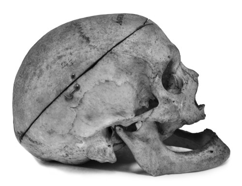 Archaeologists Discover How Women's Bodies Were Dissected In Victorian England