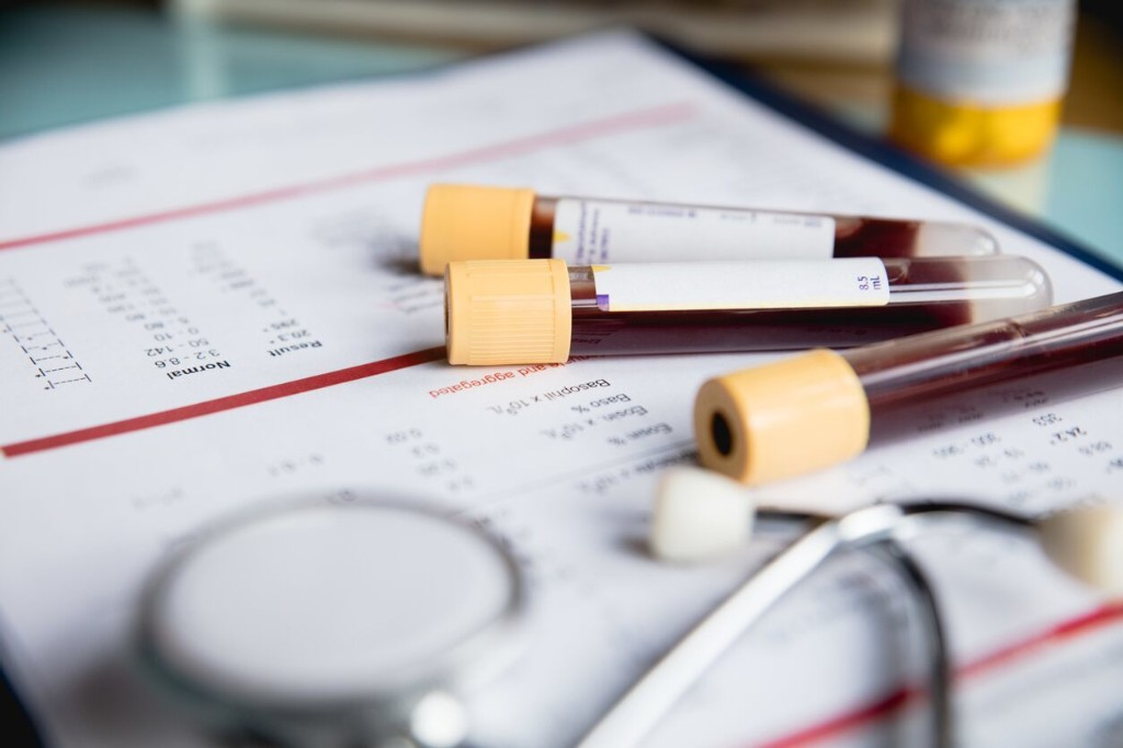 Blood test may reveal coronavirus severity, death risk