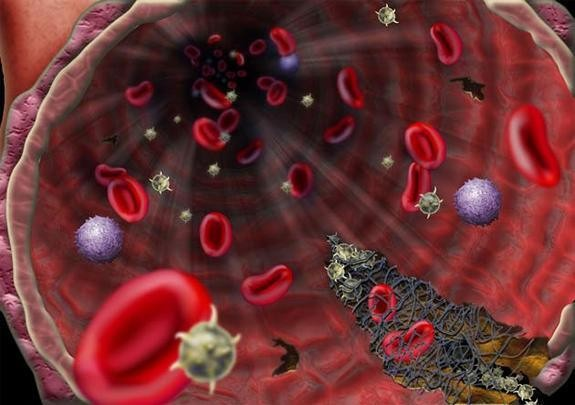 Coronavirus patients in Houston hospital becoming first in US to try experimental plasma transfusion