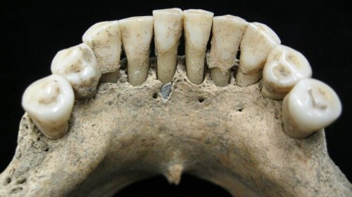 Mysterious blue pigment in medieval woman's teeth gives scientists 'bombshell' clue