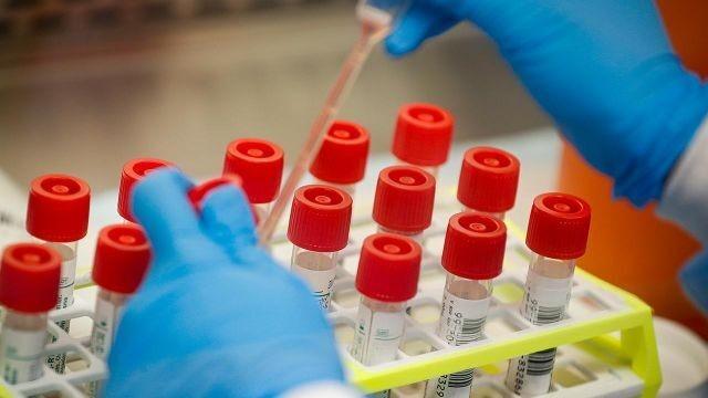 Johnson & Johnson CEO: Coronavirus vaccine early testing is 'quite encouraging'