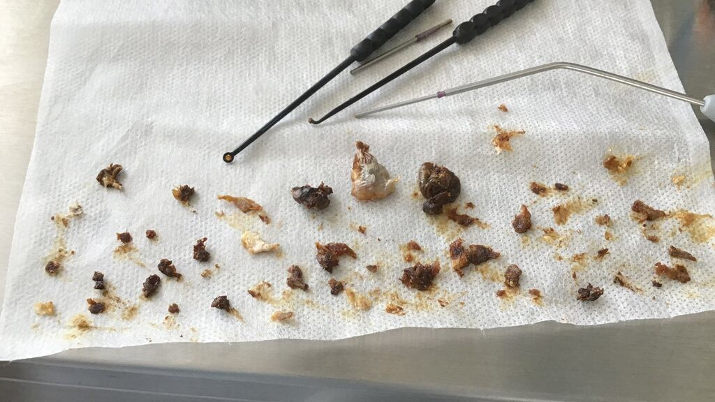 Clumps of man's earwax removed after 16 years of buildup
