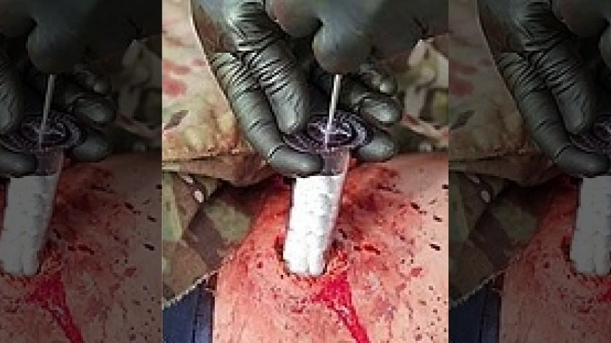 Life Saving Medical Tech, And Techniques  - cover
