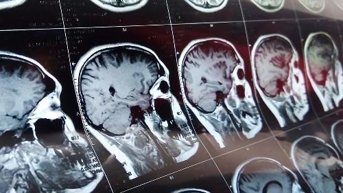 Smalll group of coronavirus patients exhibit neurological symptoms: report