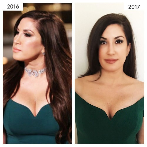 'Real Housewife of New Jersey' star Jacqueline Laurita opens up about plastic surgeries