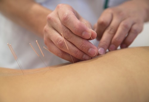The Science Behind Acupuncture—and Why It Really Works