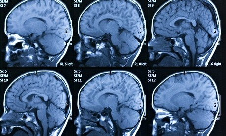 Magnetic brain stimulation treatment shown to boost memory