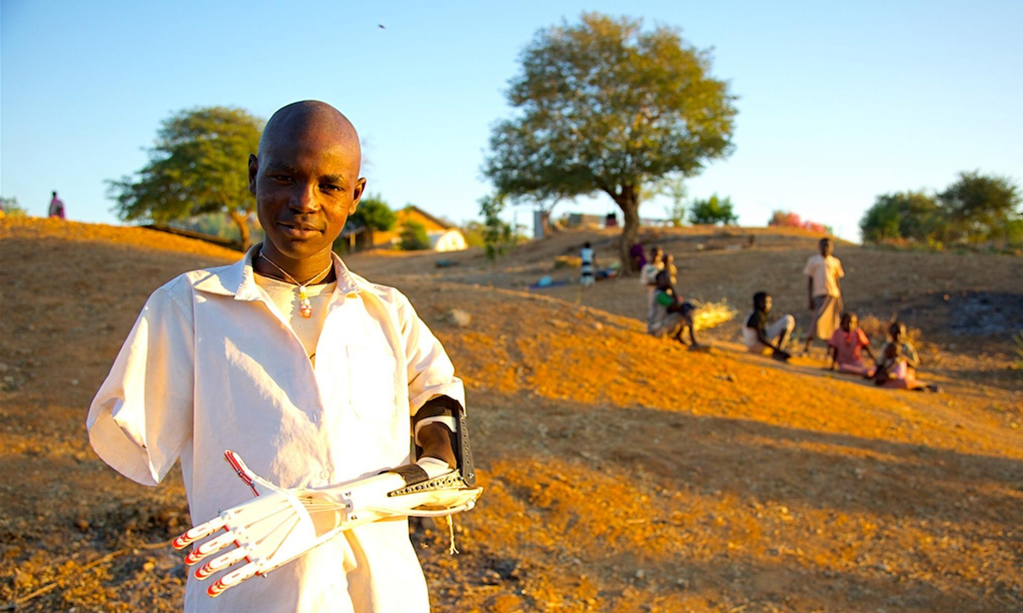 3D-printed prosthetic limbs: the next revolution in medicine