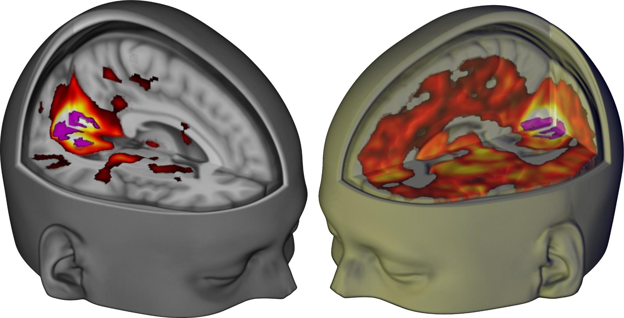 LSD's impact on the brain revealed in groundbreaking images