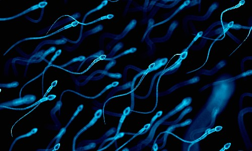 Sperm separation method may allow sex selection in IVF