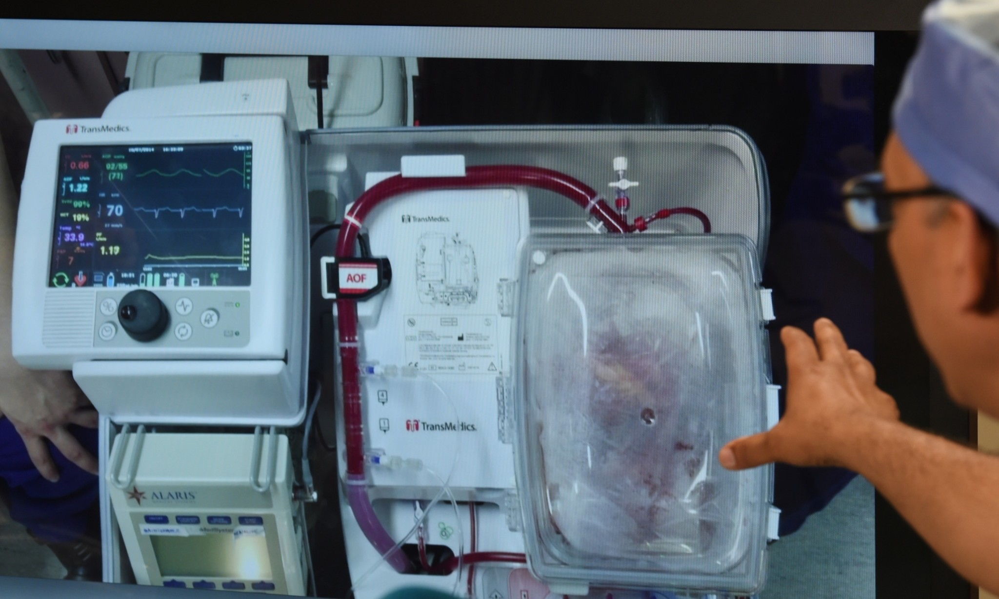 'Dead' hearts transplanted into living patients in world first