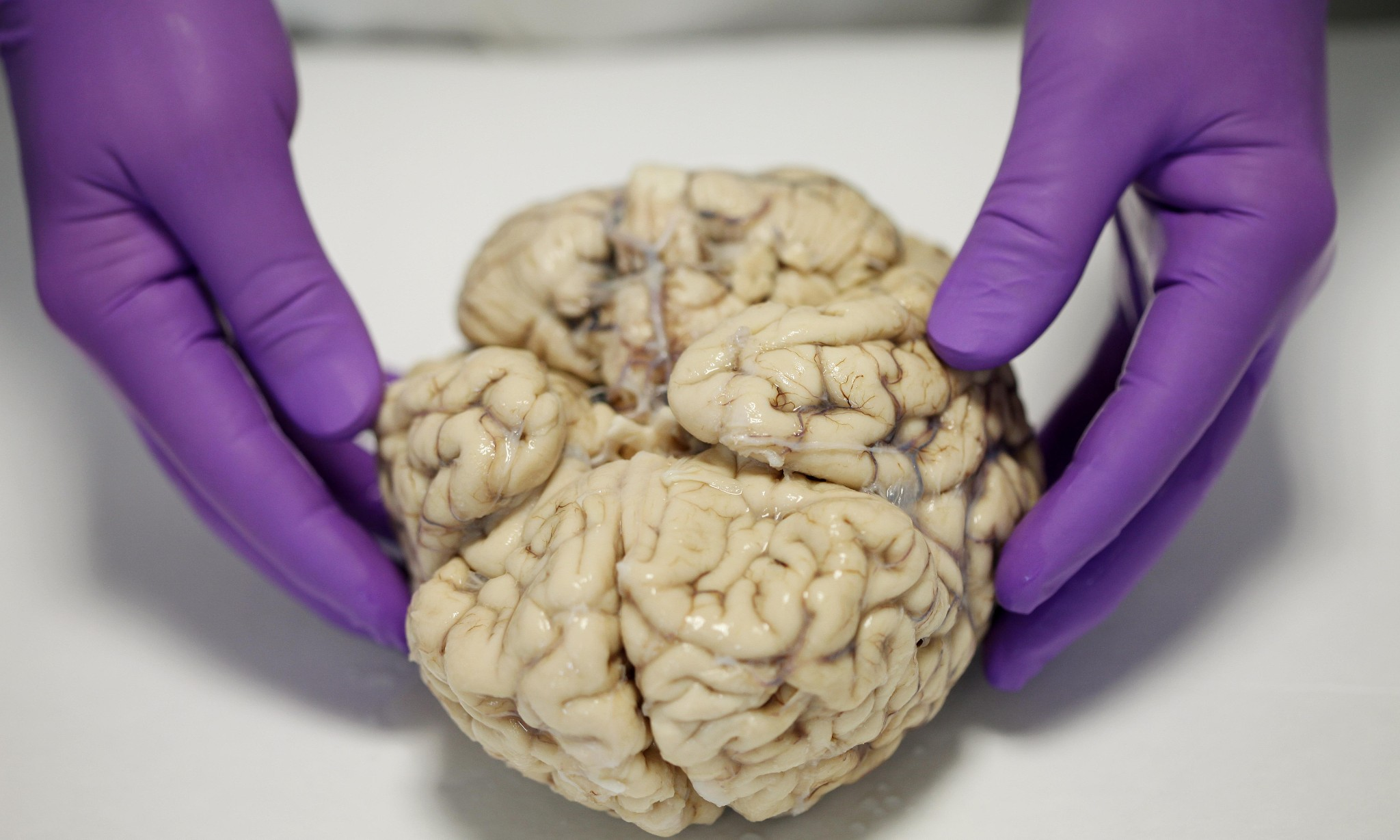 Mental health problems aren't all in the brain