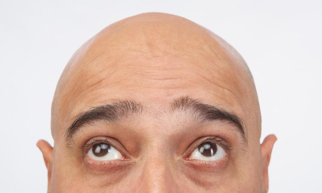 Frozen poo and narcissists' eyebrows studies win Ig Nobel prizes