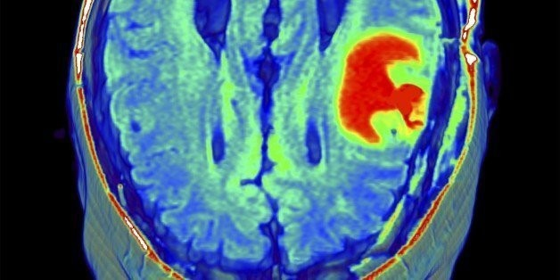 Brain Tumor Risk Higher For Teens Who Stop Growing Later   HuffPost Life
