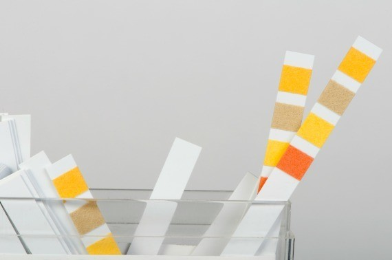 The Litmus Test for Leadership