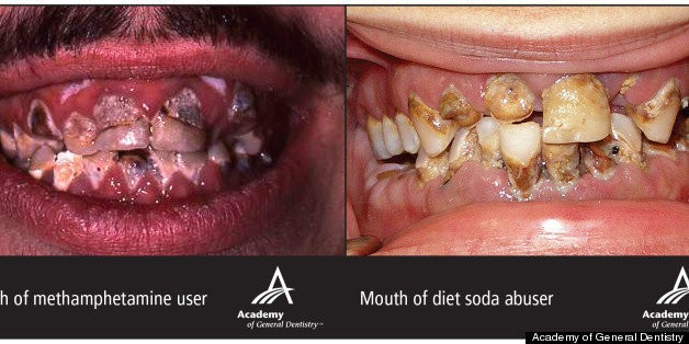 Diet Soda's Effect On Teeth Terrifyingly Similar To Effects Of Meth, Crack Cocaine (PHOTO) | HuffPost Life