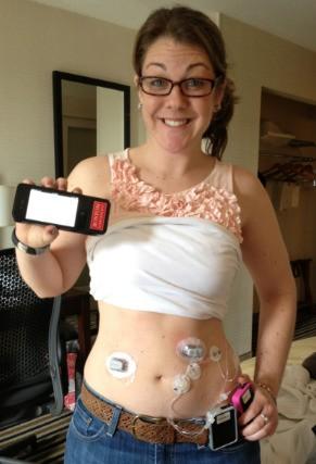 Turning Diabetes Over to the Bionic Pancreas