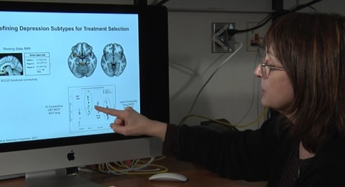 Emory Study Shows MRI's Predict Best Treatment For Depression