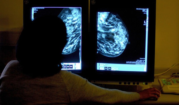 New Genetic Test Could Save Some Women With Breast Cancer From Chemotherapy