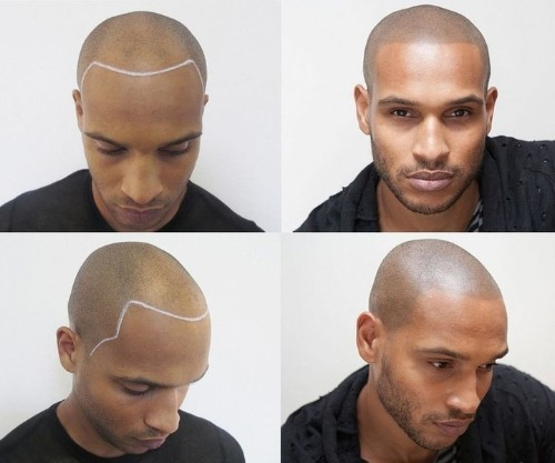 Guys Are Tattooing Hair Onto Their Bald Heads | HuffPost Life