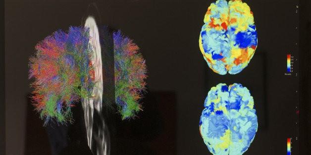5 Amazing Advances In Brain Research In 2014