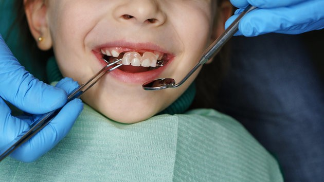Kids Under Five Are Having Rotting Teeth Extracted – But They Are Preventable