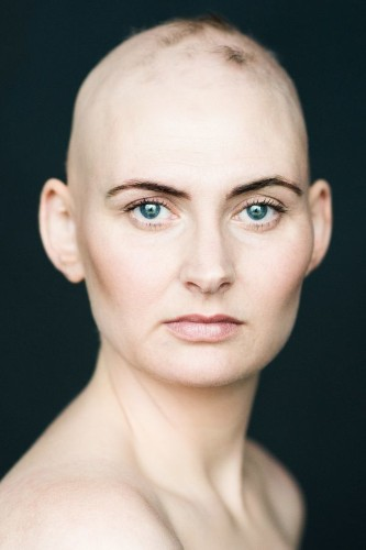 7 Stunning Portraits Of Women With Alopecia Redefine Femininity