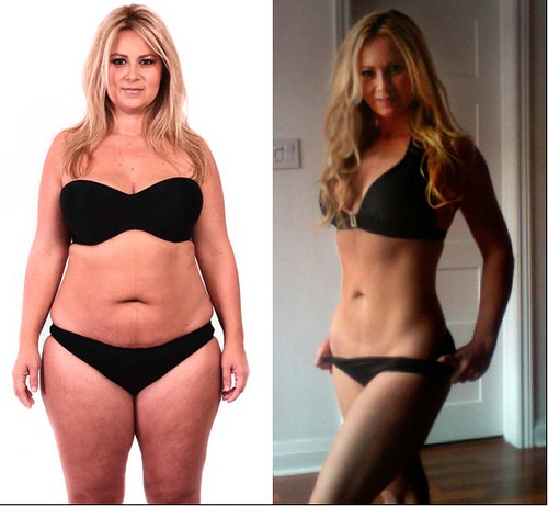 How One Woman Went From Obesity to a Bikini Body