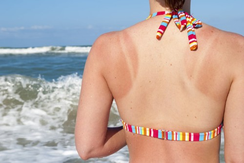 Here's What's Actually Happening To Your Body When You Get A Sunburn | HuffPost Life