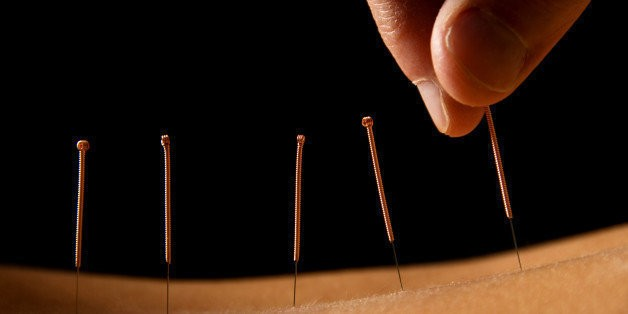 Acupuncture, Counseling Could Help People With Depression | HuffPost Life