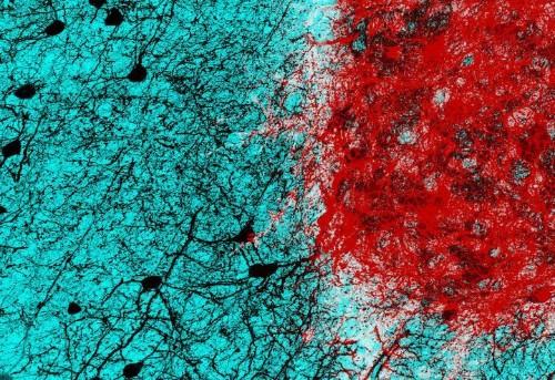 Scientists Take Big Step Toward Being Able To Repair Brain Injuries