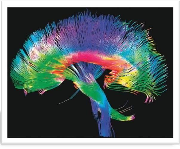 The Digital Revolution Meets the Human Brain