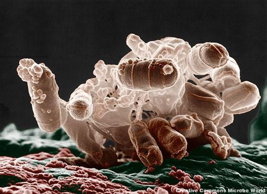 """Superbug"" Health Crisis Demonstrates Need for Food Labeling"