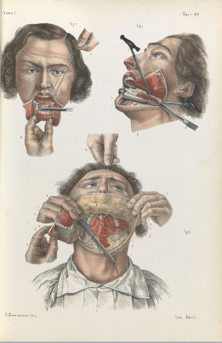 These Grisly 19th-Century Medical Drawings Will Horrify You | HuffPost Life