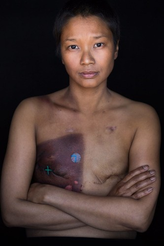 Revealing Portraits Show The Raw Emotion Of Patients 'Facing Chemo'