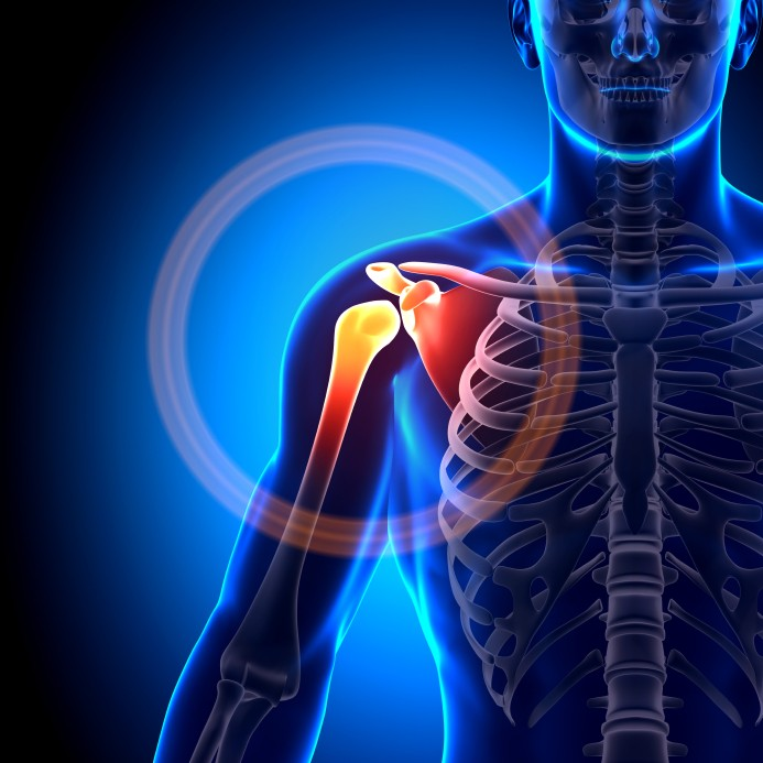 The 3 Most Common Strength Training Injuries