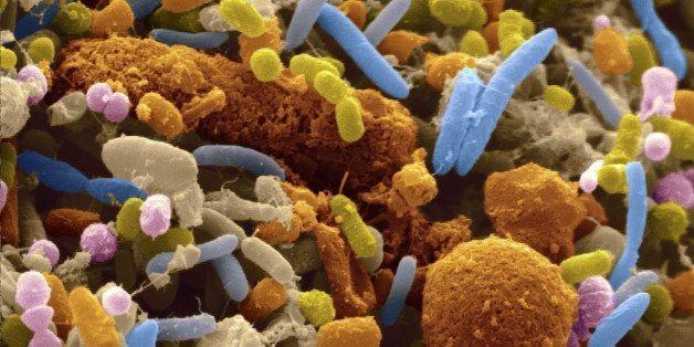 New Study Strengthens Gut Bacteria-Autism Link