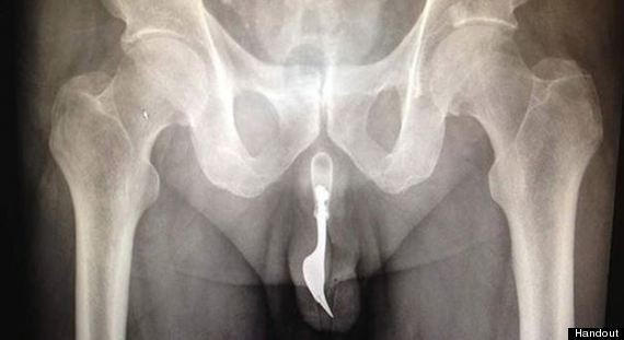 Fork In Penis Removed After 70-Year-Old Man Stuffs 4-Inch Utensil Into His Urethra (PHOTO)