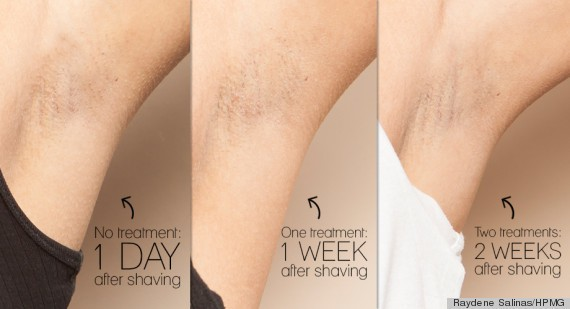 Why Laser Hair Removal Just Might Be Worth Every Penny